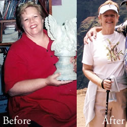 Gastric Bypass Before and After Photos * Gastric Bypass ...