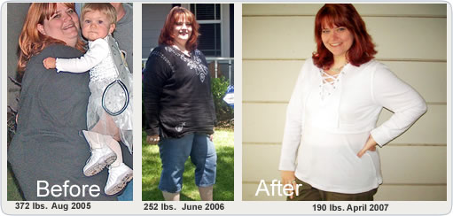 Weight Loss Surgery Before and After Pictures - Vertical Gastrectomy