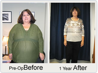 Bariatric News Surgery Blog Case Stus Statistics Weight Loss Information Study Reports